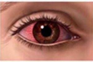 Dry Eyes & Dry Eye Syndrome