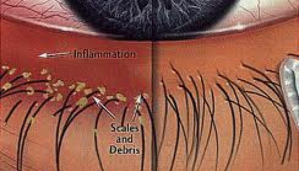 What is Blepharitis?